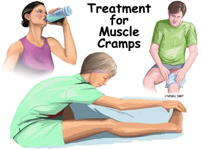Treating Muscle Cramps | Gym Workout Gloves | WAGs