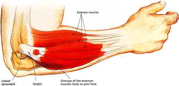 7 tips to avoid tendonitis | tendonitis exercises | wags, Cephalic Vein