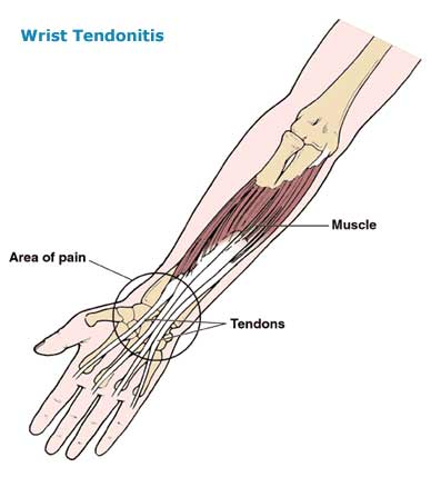7 Tips to Avoid Tendonitis | Tendonitis Exercises | WAGs