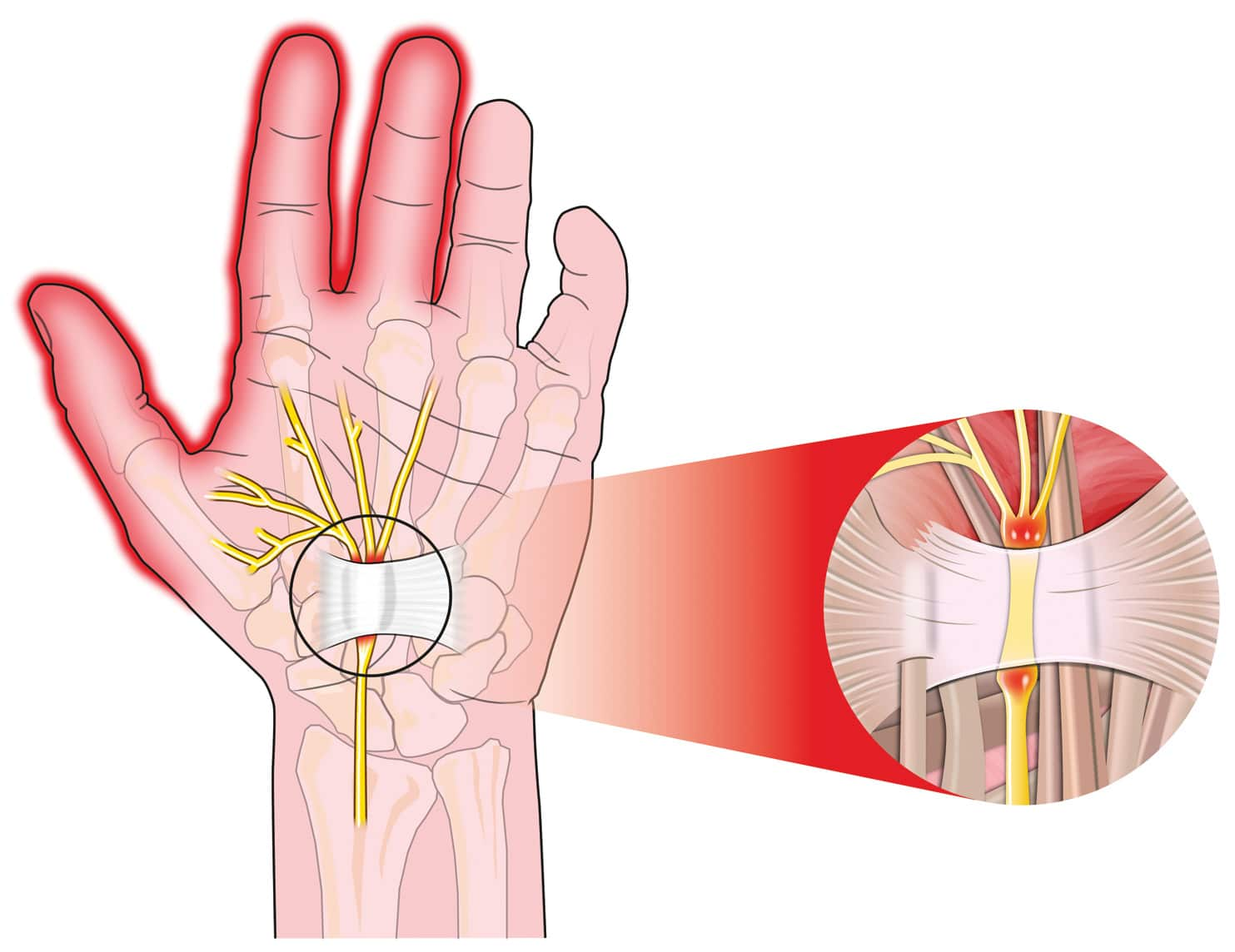 Watch out for Carpal Tunnel Syndrome