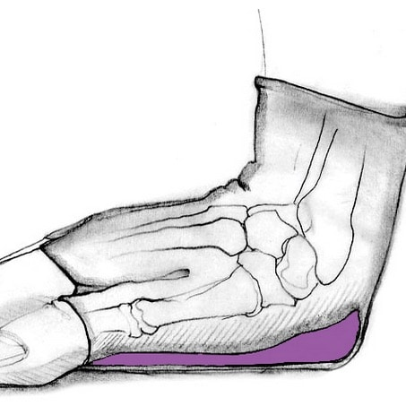B-W_hand_drawing_purple_gel_pad[1]
