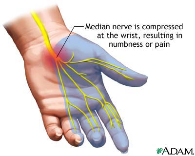 Carpal Tunnel Syndrome or something else?